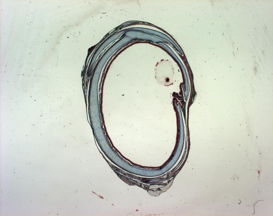 mephisto Histologische Präparate - Testat 3 - Trachea