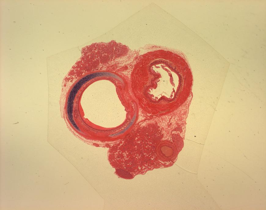 mephisto Histologische Präparate - Atemorgan - Trachea