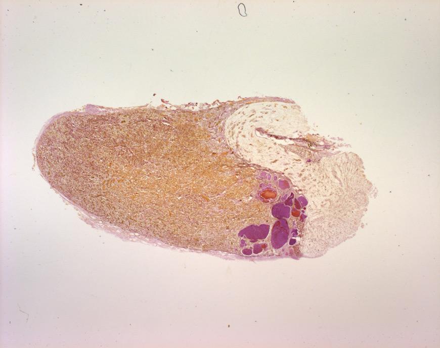 mephisto Histologische Präparate - Testat 3 - Hypophyse