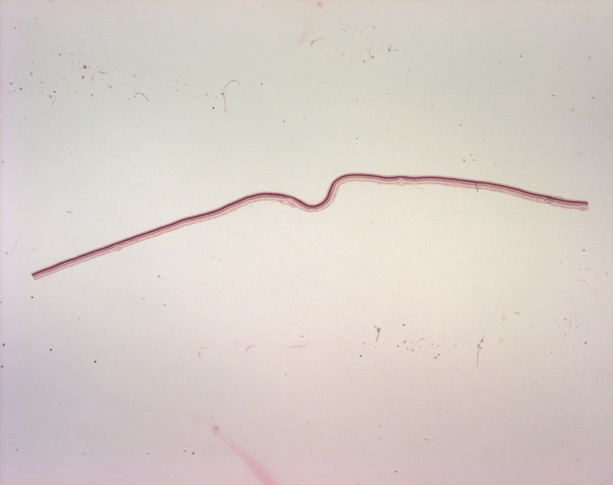 mephisto Histologische Präparate - Sinnesorgan - Retina